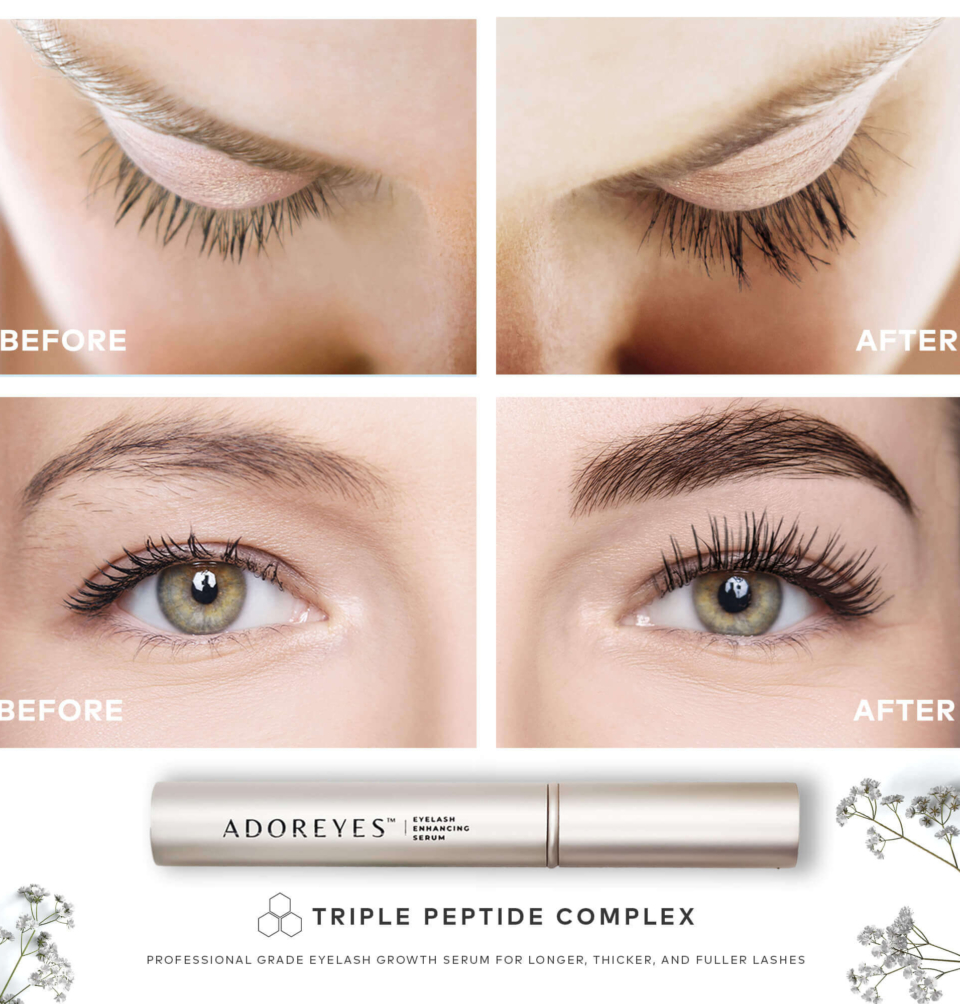 ADOREYES Before After
